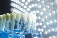 Dentists dental teeth implant. Dentists dental teeth teaching model showing each tooth, gum, root, implant, decay, plaque and enamel Royalty Free Stock Images
