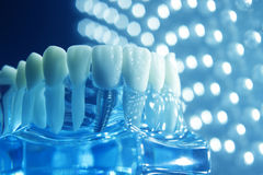 Dentists dental teeth implant. Dentists dental teeth teaching model showing each tooth, gum, root, implant, decay, plaque and enamel Stock Photos