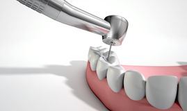 Dentists Drill And Teeth Stock Photography