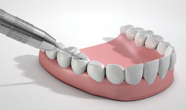 Dentists Drill And Teeth Stock Photos
