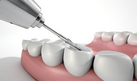 Dentists Drill And Teeth Stock Image