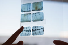 Dentists looking and pointing to xray Royalty Free Stock Photo