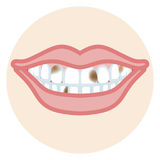 Dentition - carie dentaire illustration stock