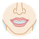 Dentition d'orthodonties, vue de face illustration stock