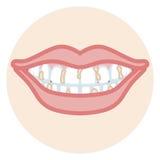 Dentition - plaque illustration de vecteur
