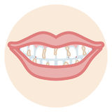 Dentition - Plaque Royalty Free Stock Photo