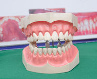 Dentoform, οδοντικό πρότυπο δοντιών Στοκ Φωτογραφίες