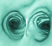Dentro il bronco umano, polmone CT Immagini Stock