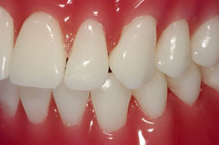 Dents Image stock