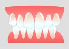 Dents antérieures humaines Photographie stock