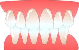 Dents antérieures humaines Photographie stock libre de droits