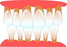 Dents antérieures humaines avec le periodontitis Photos stock