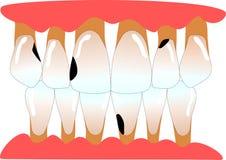 Dents antérieures humaines avec le periodontitis et les caries Photos libres de droits
