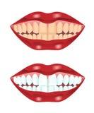 Dents avant et après le blanchiment Images libres de droits