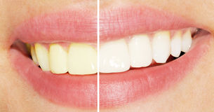 Dents avant et après le blanchiment Photo libre de droits