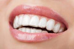 Dents avec blanchir le plateau Images libres de droits
