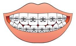 Dents avec des accolades illustration libre de droits