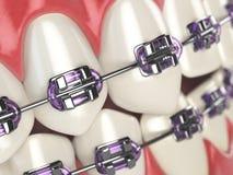 Dents avec des accolades ou parenthèses dans la bouche humaine ouverte Soins dentaires c Photographie stock