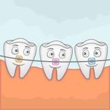 Dents avec des braches Image libre de droits