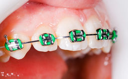 Dents avec des supports Photo stock