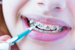 Dents avec des supports photographie stock libre de droits