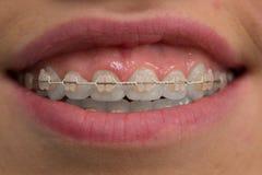 Dents avec des supports Plan rapproché Macro photographie stock libre de droits