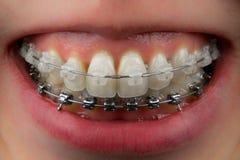 Dents avec le plan rapproché en céramique et en métal d'accolades image libre de droits