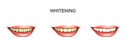 Dents blanchissant dentistry illustration libre de droits