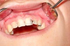 Dents cariqueuses de la mâchoire supérieure Image libre de droits
