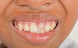 Dents cassées chez les enfants images stock
