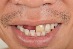 Dents cassées préjudiciables et laides photo stock