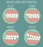 Dents courbées Problèmes de malocclusion images libres de droits