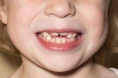 Dents d'enfant d'une fille photos libres de droits