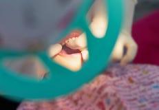 Dents d'examen de dentiste à la main avec des gants images libres de droits