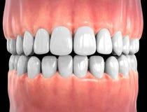 dents d'isolement par 3D photo libre de droits