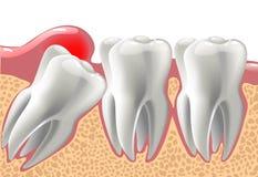 Dents 3D réalistes, et problèmes de dent de sagesse illustration libre de droits