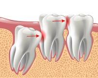 Dents 3D réalistes, et problèmes de dent de sagesse illustration de vecteur