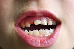 Dents de lait Photographie stock libre de droits