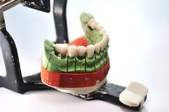 Dents de porcelaine sur le modèle en céramique de prothèse Images stock