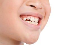 Dents de sourire d'enfant Image libre de droits
