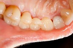 Dents en céramique appuyées image stock