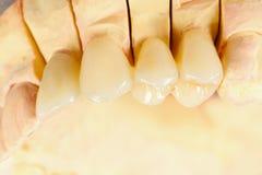 Dents en céramique appuyées photo stock