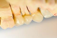 Dents en céramique appuyées images libres de droits