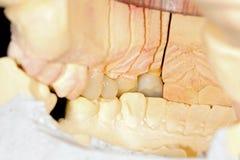 Dents en céramique appuyées image libre de droits