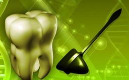 Dents et marteau chirurgical Photos stock