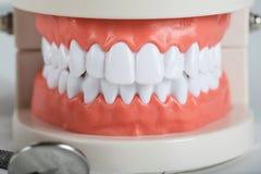 Dents et modèle de mâchoire closeup photo stock