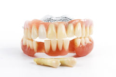 Dents fausses prosthétiques Image stock