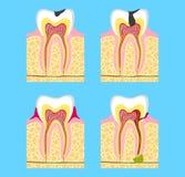 Dents malades - carie, maladie parodontale, pulpitis branche de la stomatologie de médecine pathologie des dents illustration libre de droits