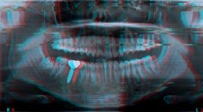Dents roentgen supérieures et mâchoire inférieure photo stock