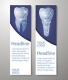 Dents saines et implant dentaire Conception de bannières Peut employer pour le marketing illustration libre de droits